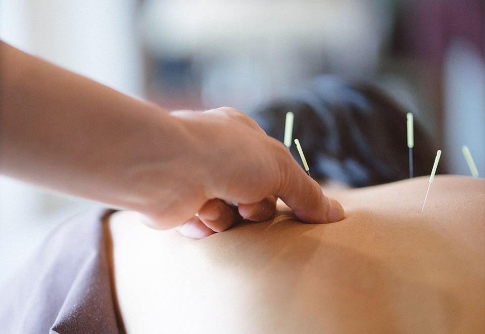At Work Skolens speciale i Triggerpunkt akupunktur